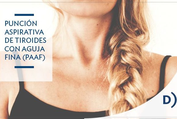 Punción de tiroides. Punción Aspirativa con Aguja Fina (PAAF)